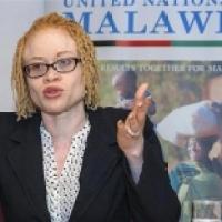 Mutilazioni, stupri e omicidi: il dramma degli albini d'Africa